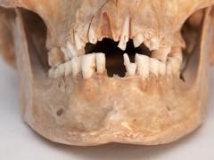Stomatologia – jak kiedyś leczono zęby?